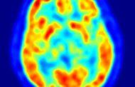 La cocaína acelera el envejecimiento del cerebro