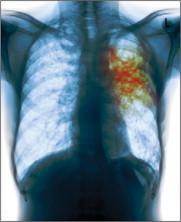 Tuberculosis: un reto para la salud pública mundial