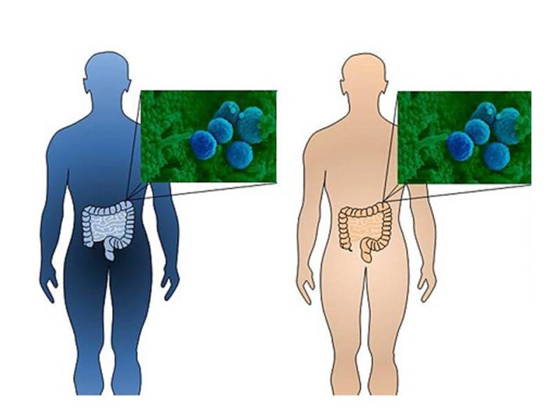 Transplante de flora intestinal de gente delgada: nueva terapia para perder peso
