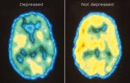 Procesos inflamatorios del cerebro podrían causar depresión