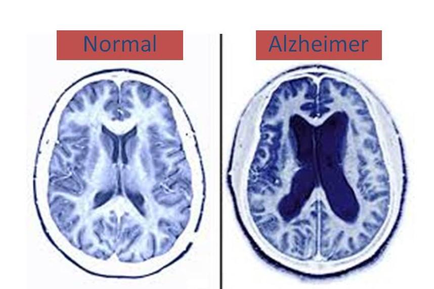 ¿Valiosas posibilidades para el Alzheimer?