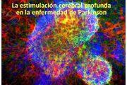 Enfermedad de Parkinson: Estimulación Cerebral Profunda ¿es ya una realidad?