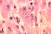 Chagas, la enfermedad emergente que amenaza a Europa y Estados Unidos