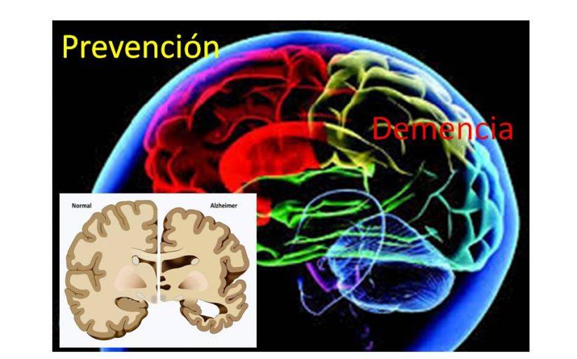 Expectativa de vida, demencia y prevención