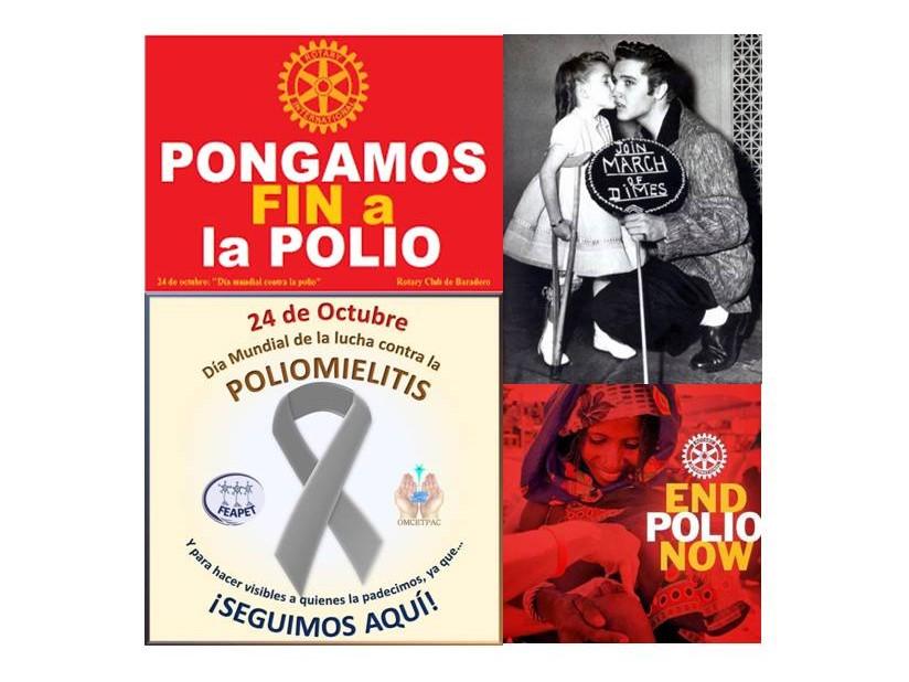 Día mundial de la poliomielitis: sus avances