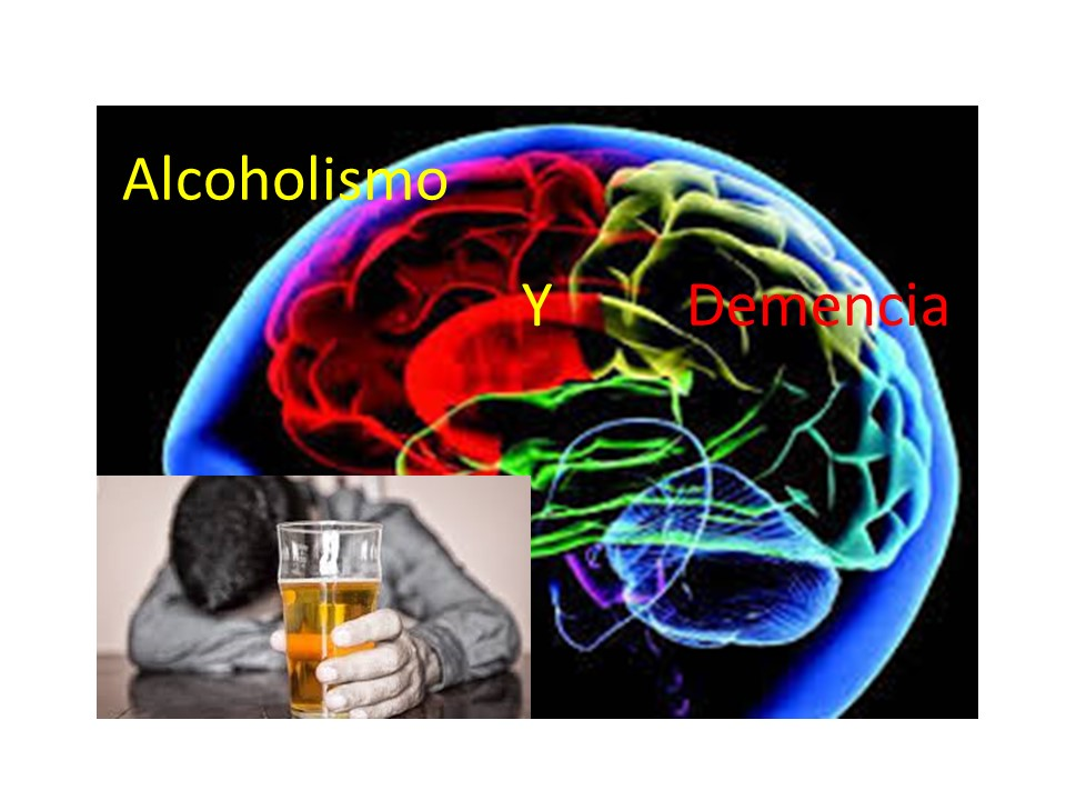 Relación entre el alcohol y demencia. ¿Positiva o negativa?