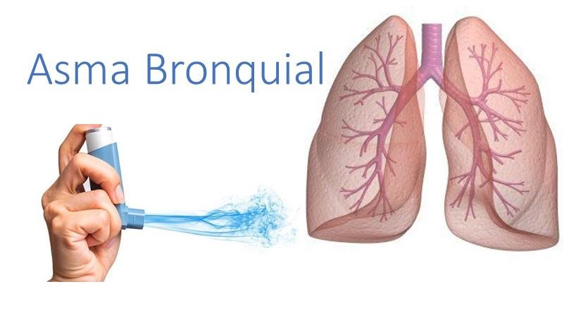 síntomas de la bronquitis asmática de la diabetes